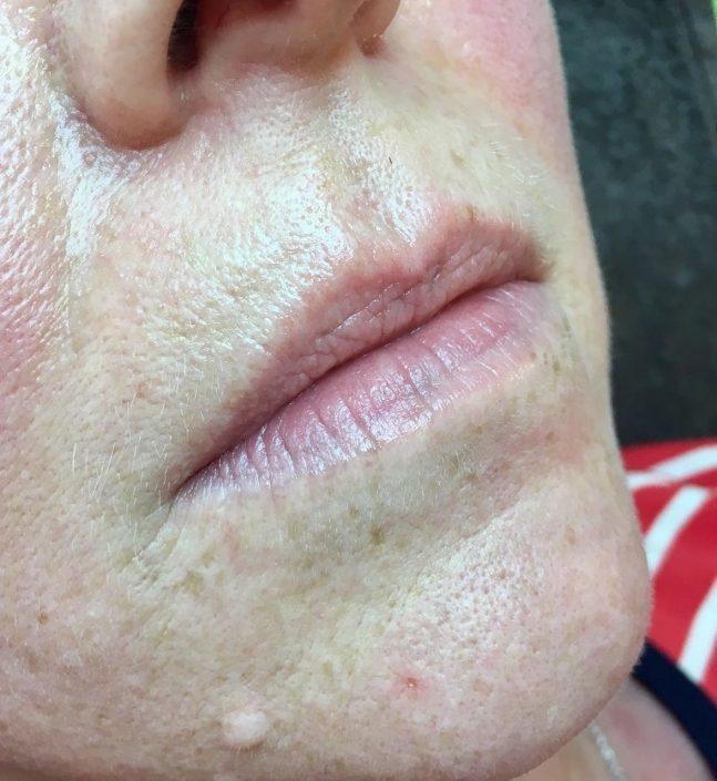 Permanent Make-up Lippen vorher